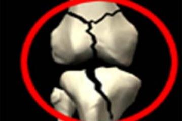 توصیه های تغذیه ای در افراد مبتلا به پوکی استخوان