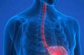 تغذیه درمانی پزشکی در اختلالات دستگاه گوارش فوقانی